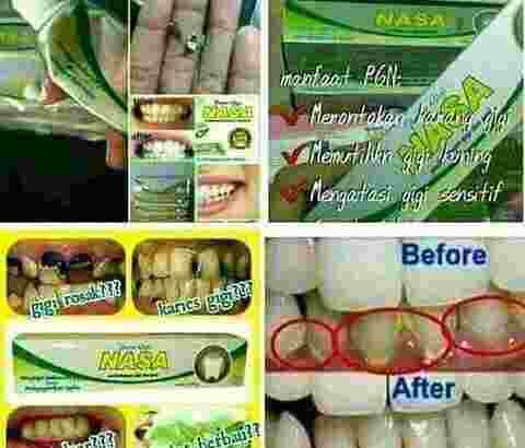 kesehatan mulut Nasa herbal