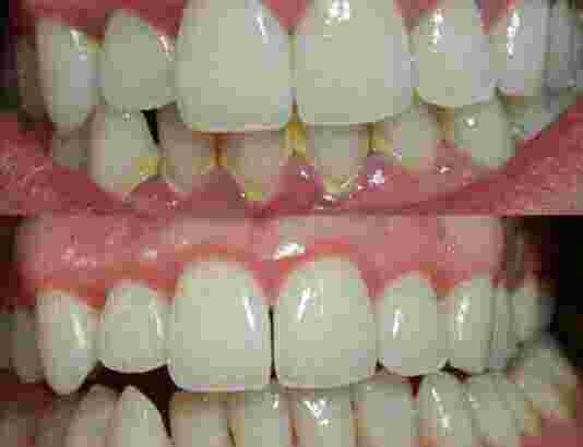 Pasta Gigi ajaib menghilangkan segala masalah pada gigi