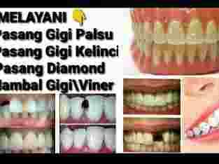 – Pasang gigi palsu – Pasang gigi kelinci – Pasang Diamont